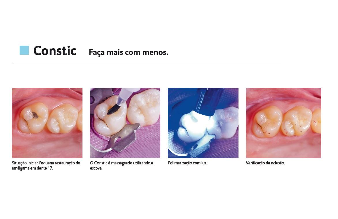 Infográfico do produto Resina Constic A3,5