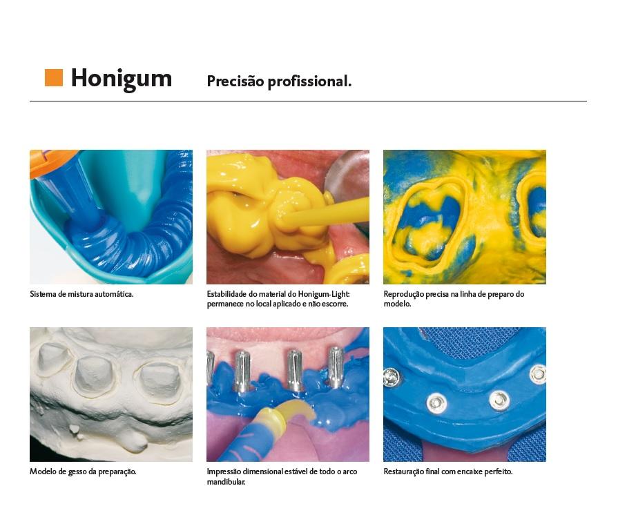 Infográfico do produto Silicone de Adição Honigum AM Light  - 8 unid.