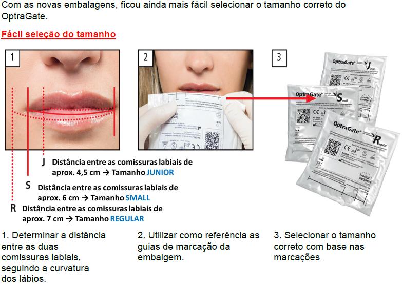 Infográfico do produto Afastador Labial Optragate 3D Small