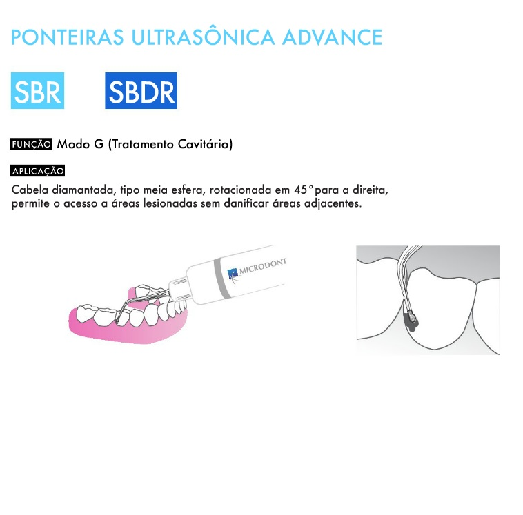 Infográfico do produto Ponta de Ultrassom - SBDR