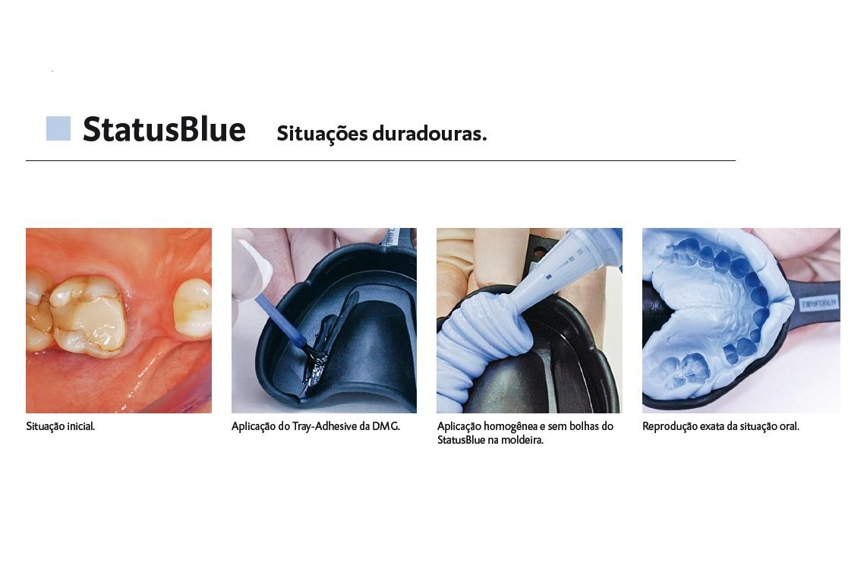 Infográfico do produto Silicone de Adição StatusBlue MS
