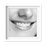 Quadro Decorativo Sorriso Ortodontia - 7417