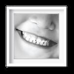 Quadro Decorativo Sorriso Criança - 7149
