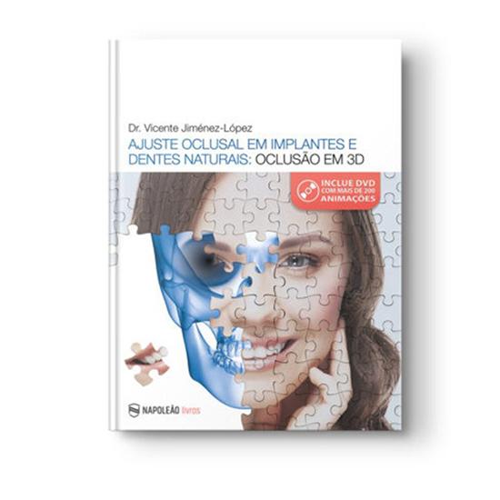 Livro Ajuste Oclusal em Implantes e Dentes Naturais: Oclusão em 3d