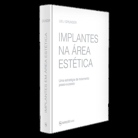Livro Implantes Na Área Estética: Uma Estratégia de Tratamento Passo-A-Passo
