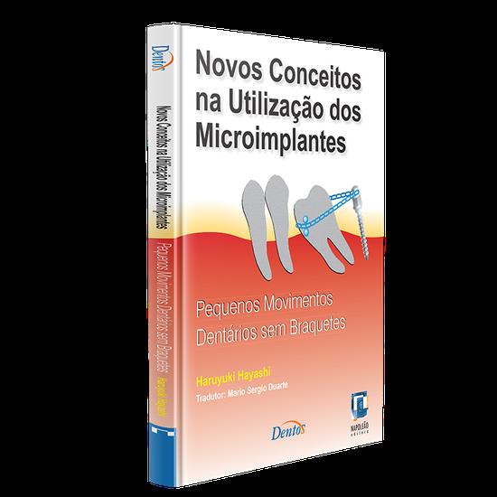 Livro Novos Conceitos Na Utilização dos Microimplantes: Pequenos Movimentos Dentários sem Bráquetes