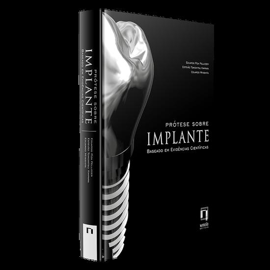 Livro Prótese Sobre Implante: Baseado em Evidências Científicas
