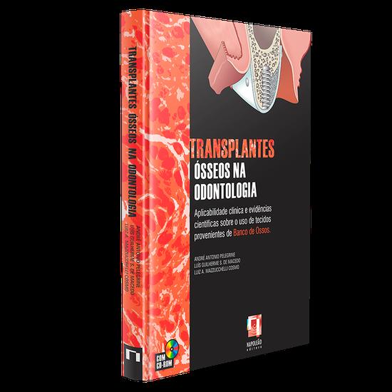 Livro Transplantes Ósseos Na Odontologia