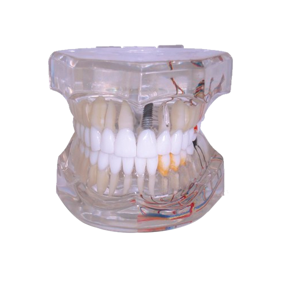 Macromodelo Adulto c/ Implante Cone Morse Prótese Ciment. c/ Hemi Arco Ramificado Endo Carie e Perio